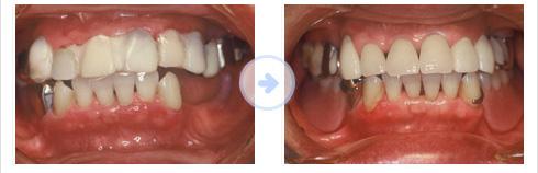 歯周治療のメンテナンス